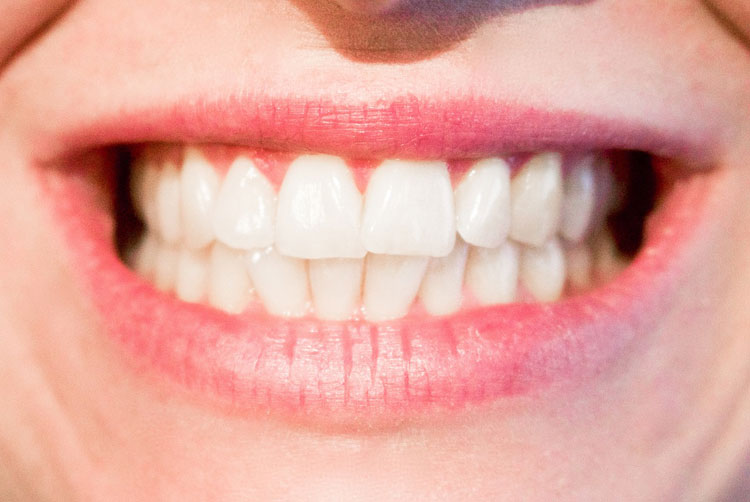 How to Get Rid of Cavities: 14 Effective Home Remedies
