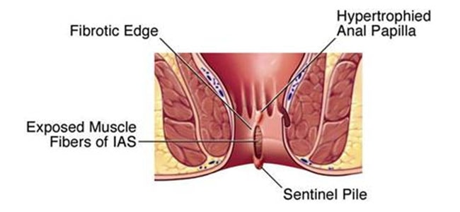 Causes, Symptoms  Home Remedies To Cure Anal Fissures-8693